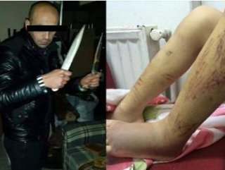 Uyuşturucu bağımlısı kızına işkence yapıp Facebook'ta paylaştı