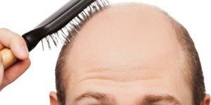 Erkeklerde stres saçları döküyor
